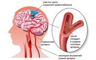 Как увеличить продолжительность жизни после инсульта восстановление и профилактика повторного приступа