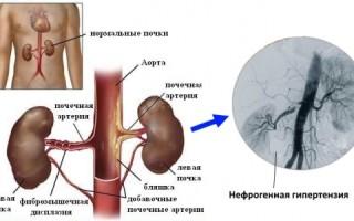 Аналоги препарата фозиноприл