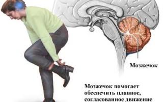 Опухоль мозжечка головного мозга