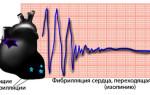 Желудочковая тахикардия симптомы и лечение