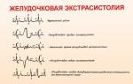 Желудочковые аритмии: причины, виды, лечение