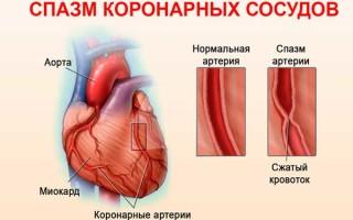 Причины спазма сосудов, симптомы, диагностика и лечение