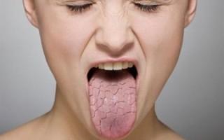 Аналоги и заменители Моксонидипина сравнительная характеристика, отзывы врачей и пациентов