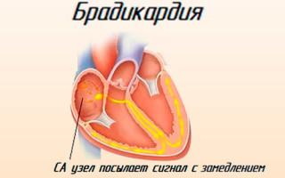 Какой пульс при аритмии сердца?