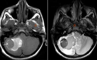 Инсульт мозжечка причины, симптомы проявления и методы лечения