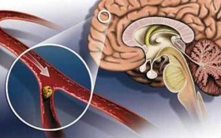 Обзор препаратов для укрепления сосудов и капилляров