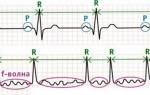 Как восстановить ритм сердца при мерцательной аритмии