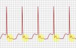 Операция на сердце при аритмии прижигание отзывы здоровое сердце
