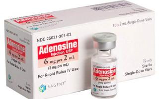 Аритмия и тахикардия чем отличаются