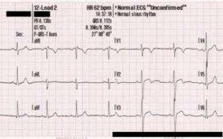 Экг-диагностика нарушений функции автоматизма синусового узла, замещающих комплексов и ритмов