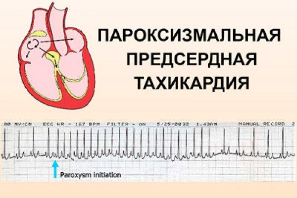 Симптомы и лечение наджелудочковой тахикардии