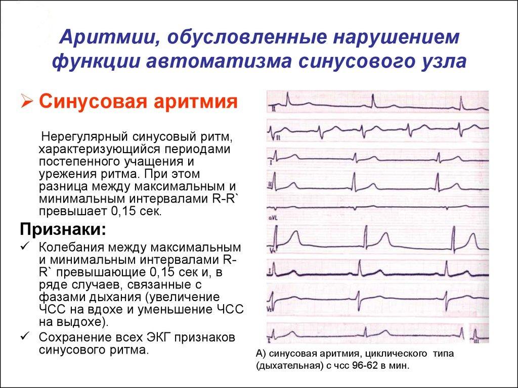 Виды аритмии сердца