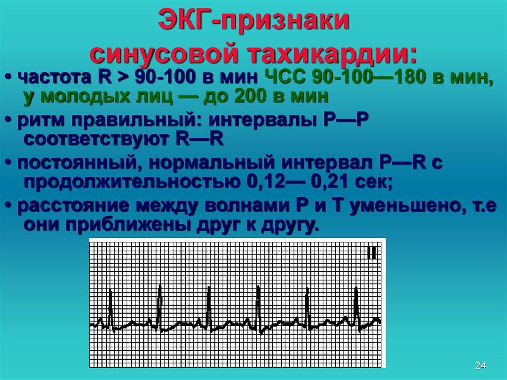 Синусовая тахикардия сердца: что это такое, причины и лечение