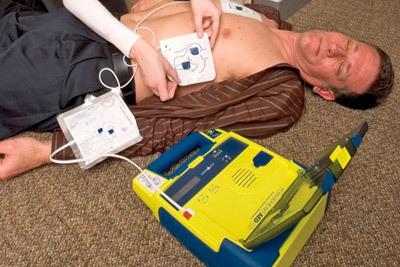 Восстановление сердечного ритма при мерцательной аритмии током