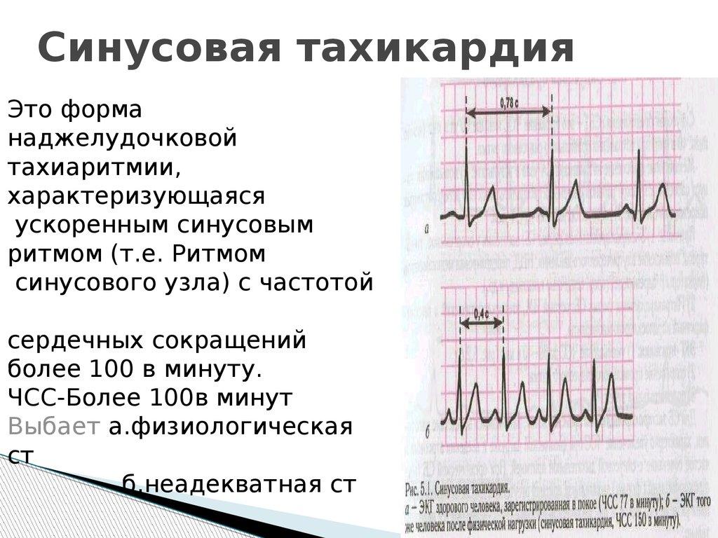 Важный отклик организма — тахикардия сердца: что это такое и как ее лечить