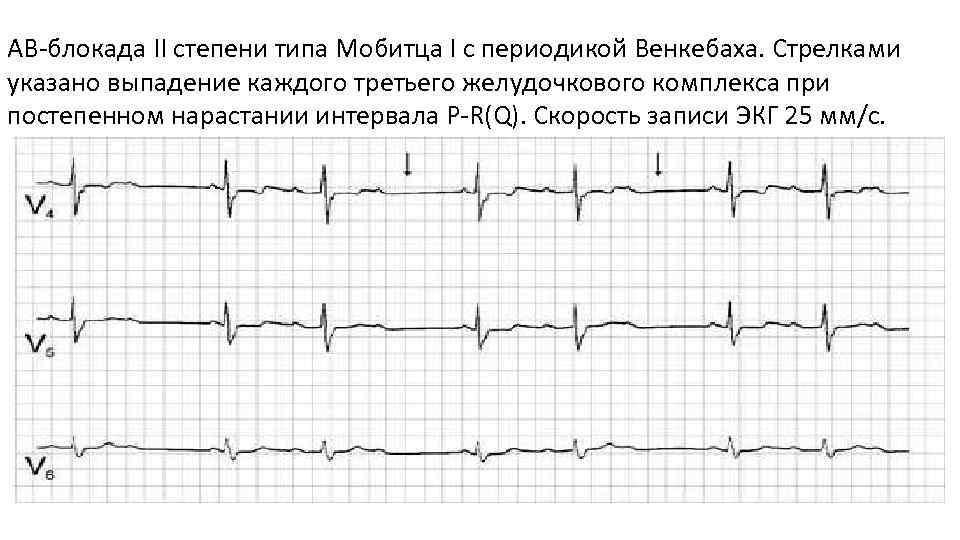 Блокады сердца (i, ii степени, полная): что это такое и как лечить