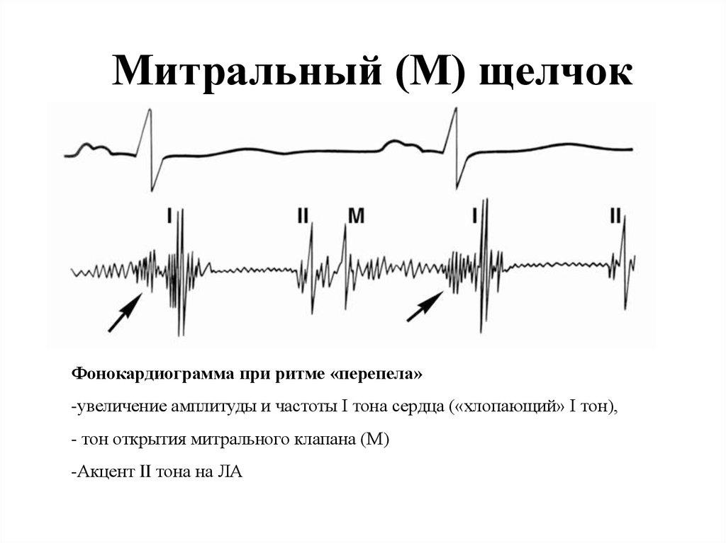 Ритм перепела при сердечной недостаточности