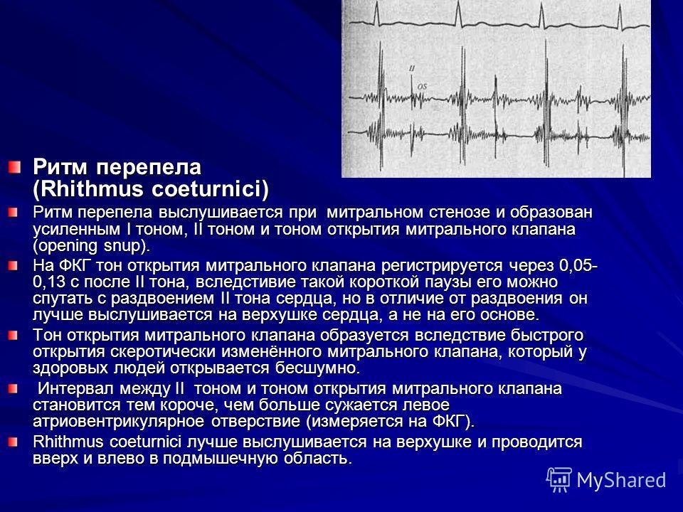 Ритм галопа и ритм перепела: признаки патологических тонов, причины, диагностика, лечение
