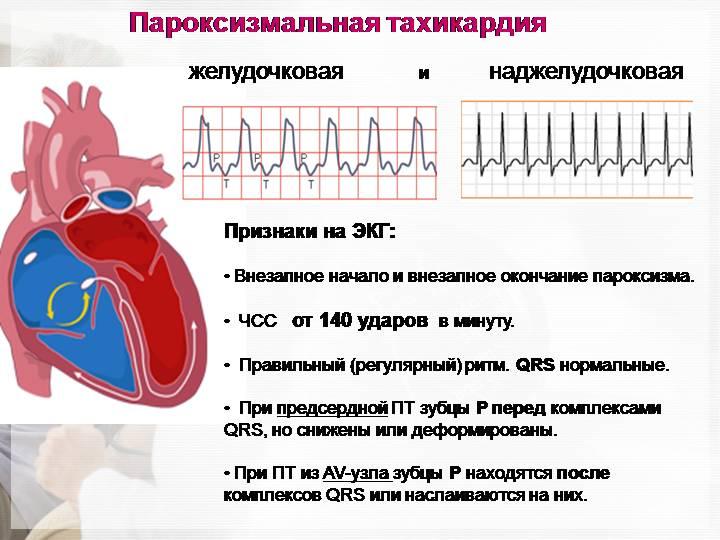 Профилактика тахикардии сердца