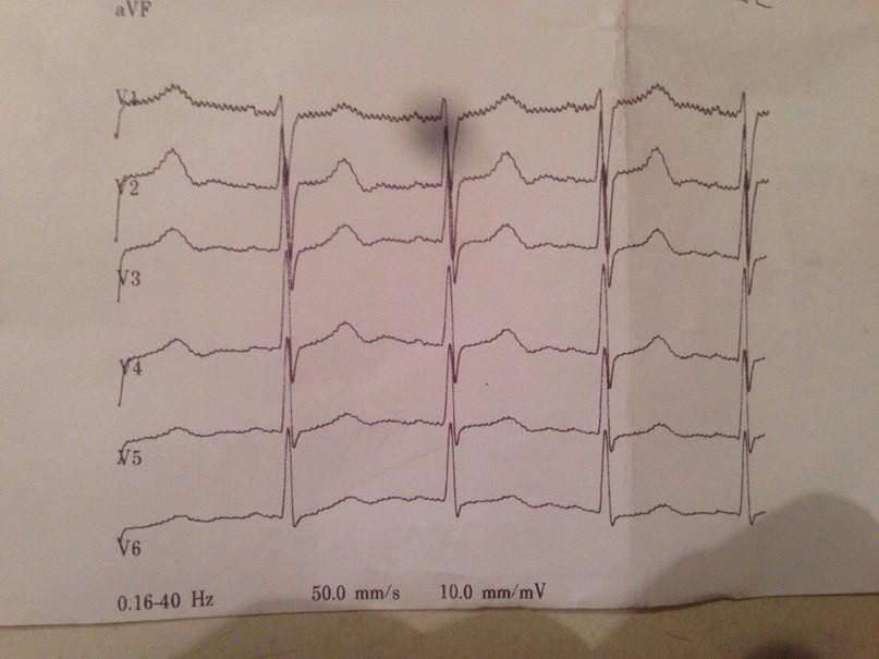 Тахикардия при всд: виновато ли сердце?