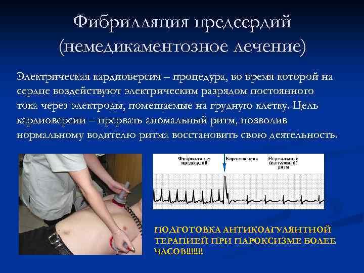 Восстановление ритма сердца разрядом электротока отзывы