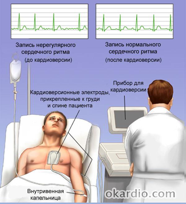 Восстановление сердечного ритма