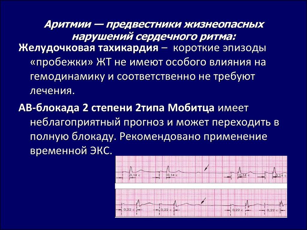 Нарушения ритма сердца: причины и симптомы сбоев в зависимости от типа, необходимые обследования и лечение