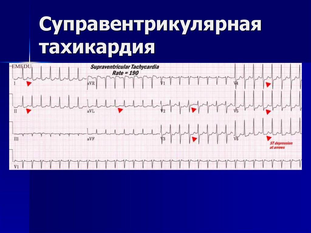 Все факты об экстраситолии сердца