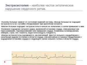 Чем опасна экстрасистолия при обострениях всд: методы лечения и профилактики