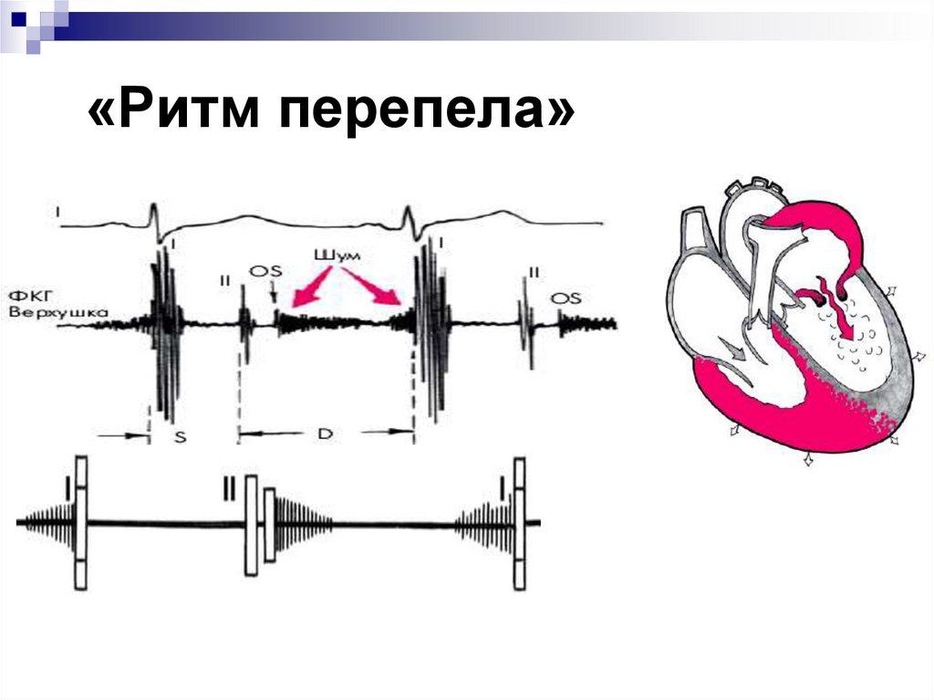 Ритм галопа слушать - лечение гипертонии