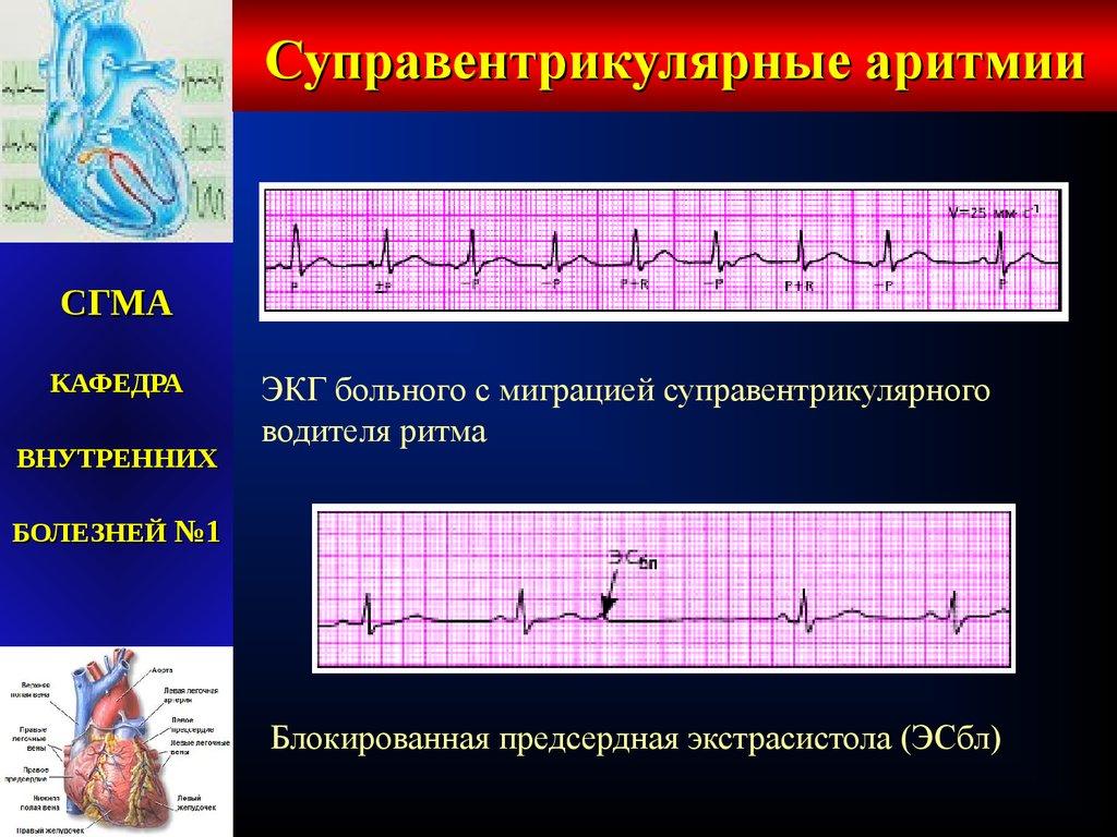 Аритмии сердца у взрослых и детей. лечение нарушений ритма (аритмий) сердца