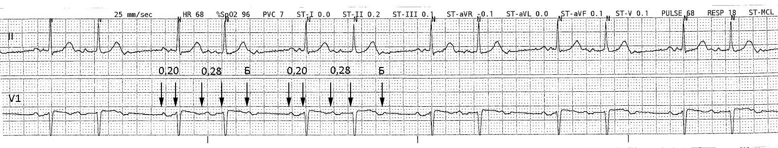 Атриовентрикулярная блокада третьей степени (полная блокада) | кардио болезни