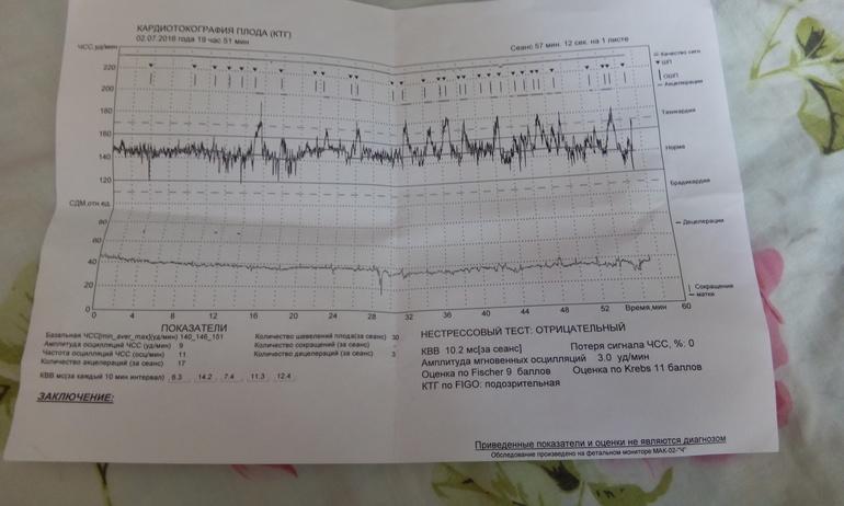 Ктг (кардиотокография). расшифровка, интерпретация и оценка результатов ктг в норме и при патологии