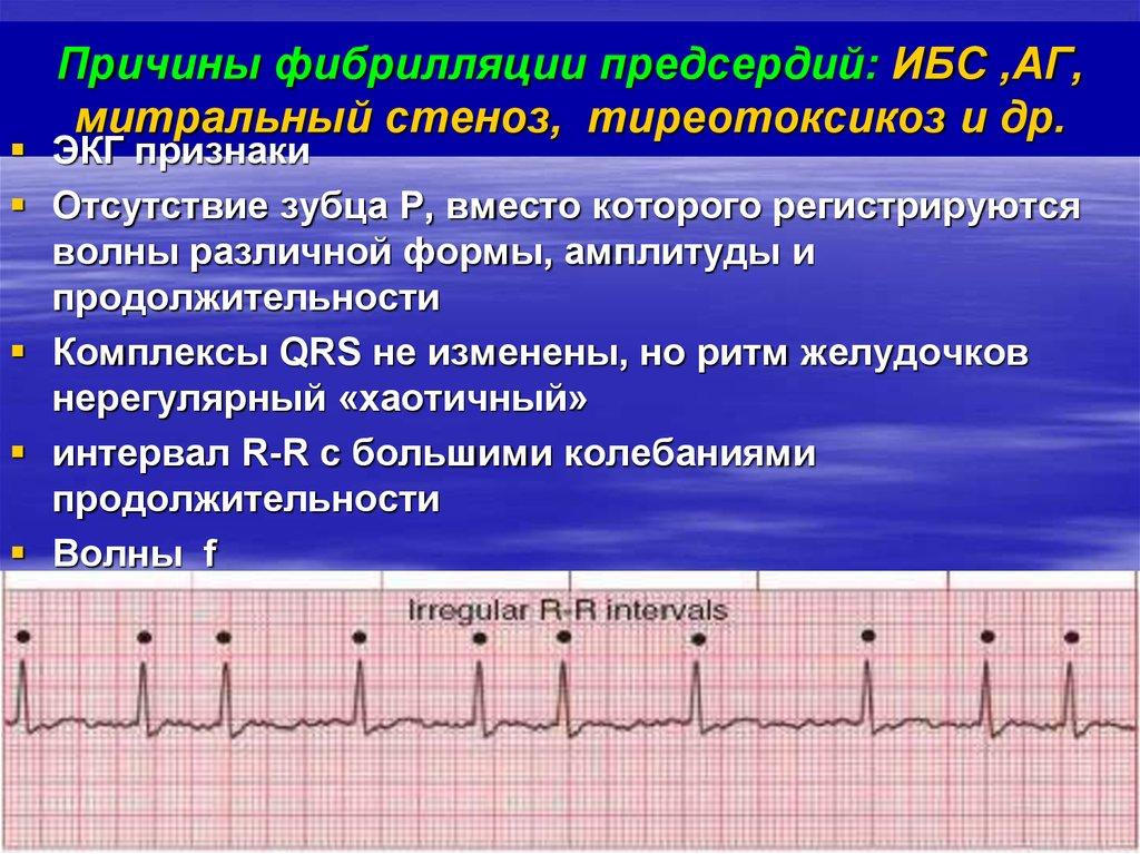 Почему появляется аритмия сердца и опасна ли она для жизни?