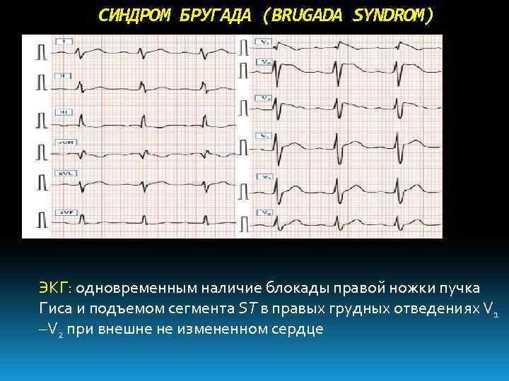 Синдром бругада: экг признаки, диагностические критерии, лечение