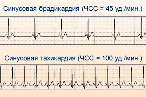 Брадикардия (низкий пульс) у детей и взрослых: виды, возникновение, проявления, диагностика, лечение