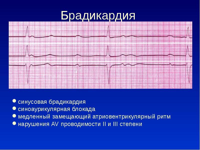 Брадикардия сердца — что это такое, причины, симптомы и лечение, профилактика