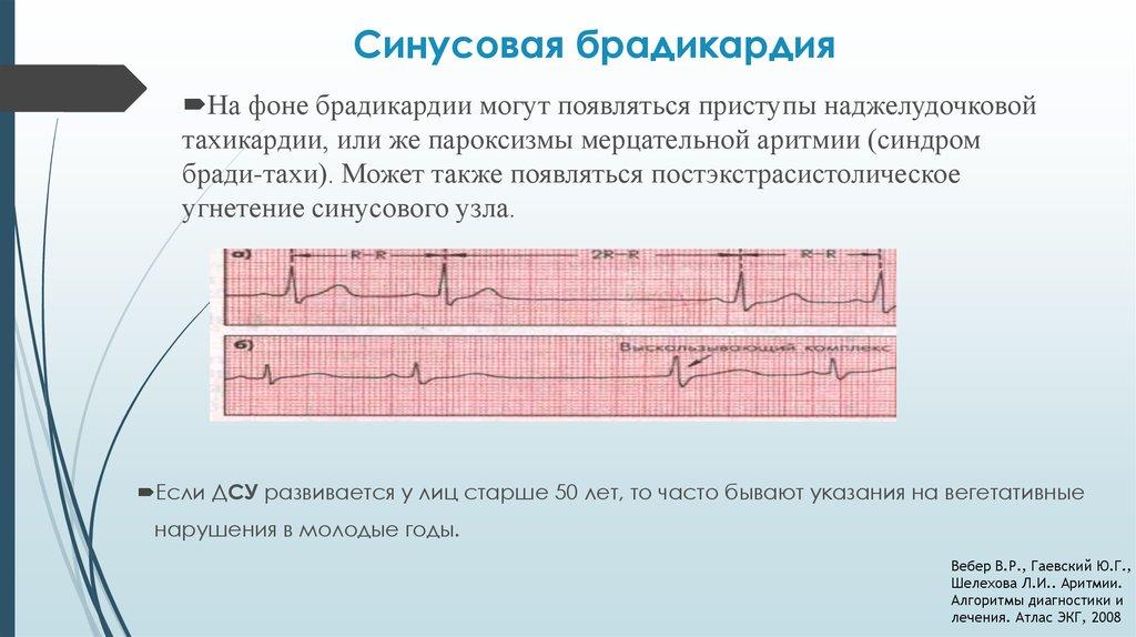 Синдром брадикардии тахикардии
