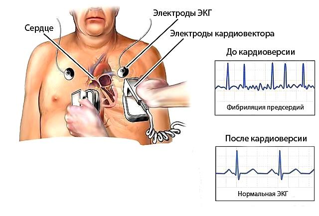 Восстановление ритма сердца разрядом электротока: основные рекомендации