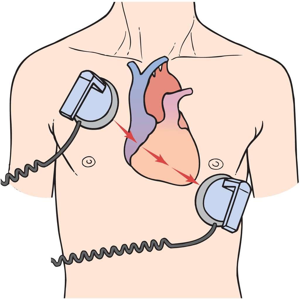 Кардиоверсия при мерцательной аритмии: отзывы во время фибрилляции предсердий