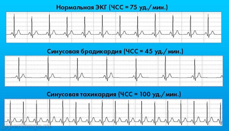 Синусовая брадикардия сердца у подростка