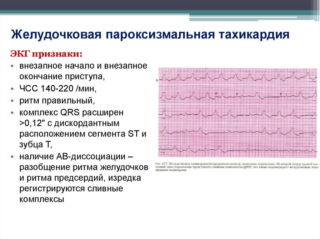 Невроз учащенное сердцебиение
