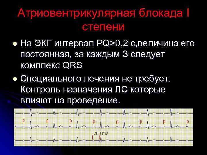 Атриовентрикулярная блокада второй степени: признаки, симптомы, диагностика, лечение, прогноз