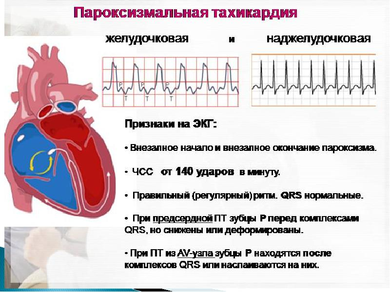 Тахикардия сердца: симптомы, диагностика и лечение