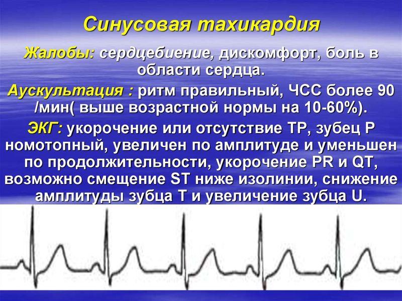 Синусовая тахикардия. причины, симптомы, лечение и профилактика синусовой тахикардии.