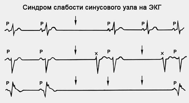 Типы  аритмии сердца