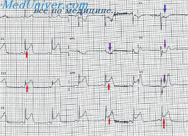 Миграция водителя ритма сердца по предсердиям: что это такое, лечение и профилактика