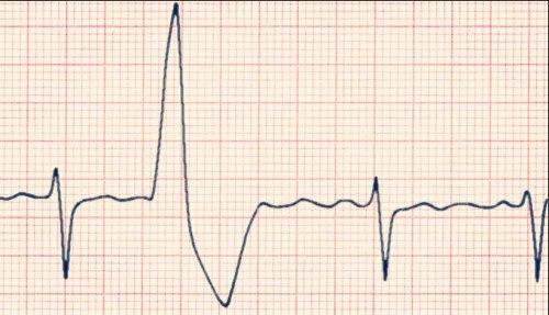 Экстрасистолия при всд: особенности лечения, причины возникновения, симптомы