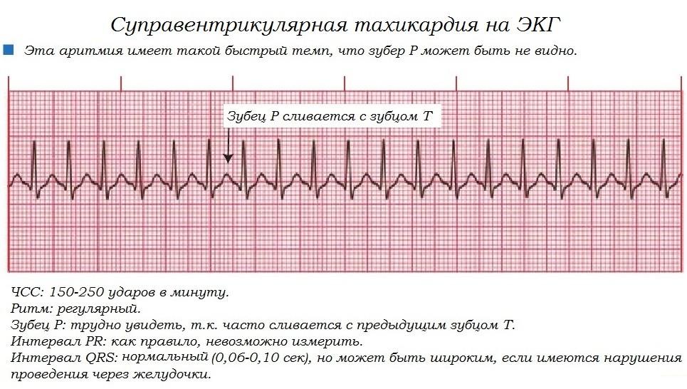 Вся правда о желудочковой аритмии и её формах