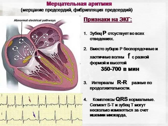 Чем опасна аритмия сердца: классификация, последствия, лечение и диагностика